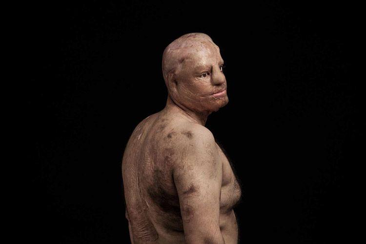 Hombre víctima de un ataque con ácido