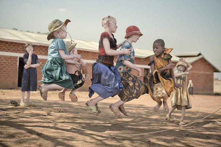 Niños albinos en el Refugio de Kabanga