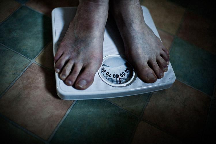 Trastornos alimentarios. Un mal día