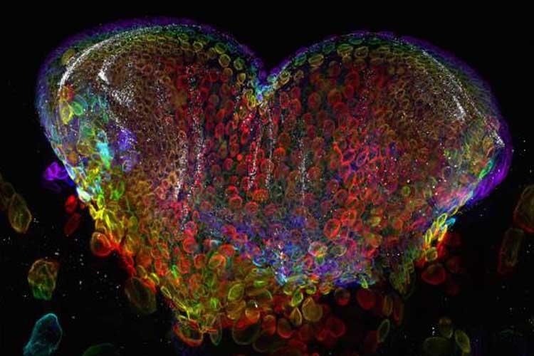 Fotografías Microscópicas de una larva de mosca de la fruta