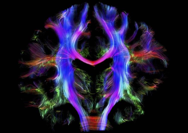 Fotografía de la parte de atrás del cerebro